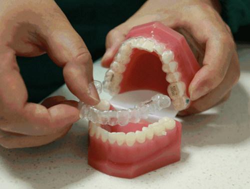 洗牙是为了什么