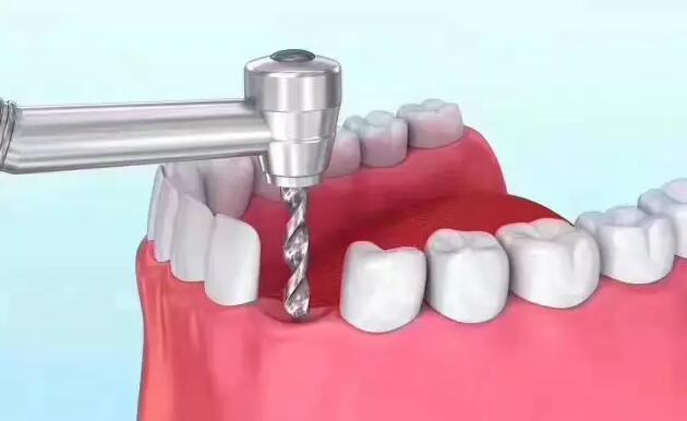牙齿缺失想种牙,那种植体要怎么选?