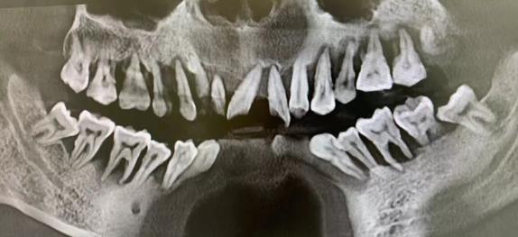 牙周自测 你的牙周健康吗?
