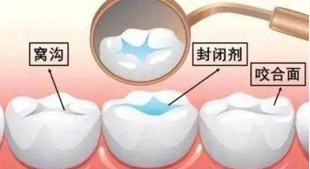 开学季|同学们,开学前必须了解的口腔必备小tips!