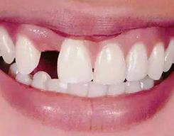 拔除牙齿后多久可以种植牙齿